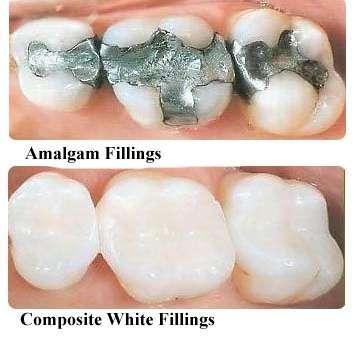 amalgam vs composite