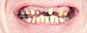 Few Teeth in Mouth
