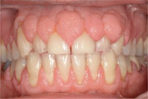 Gingival