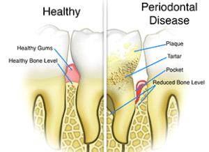 Healthy vs Perio