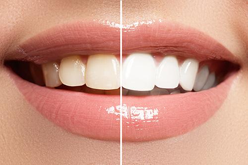 How do I whiten my teeth?