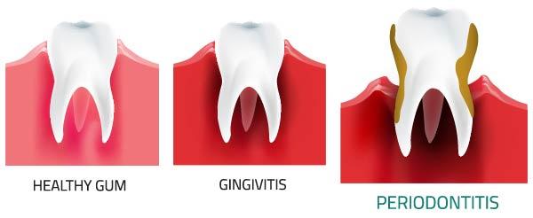 normal gingivitis perio