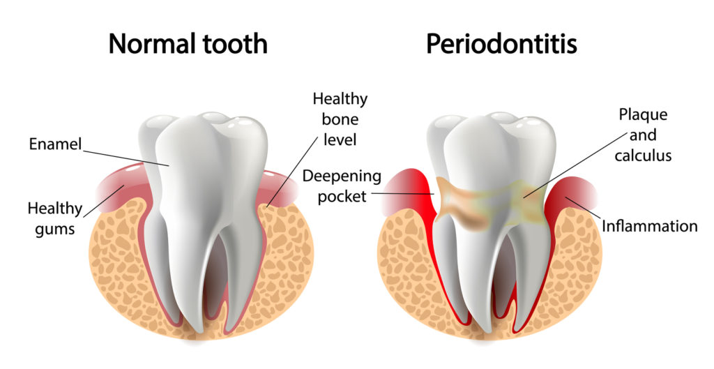 normal vs periodontitis