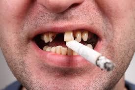 smoking perio