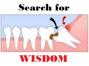 wisdom tooth exo