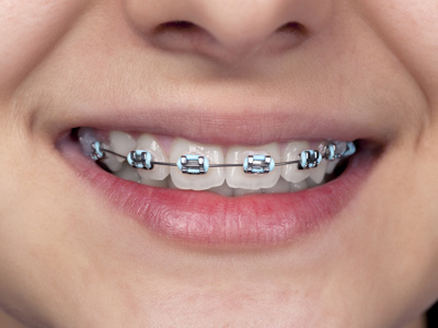 Braces/invisible Braces